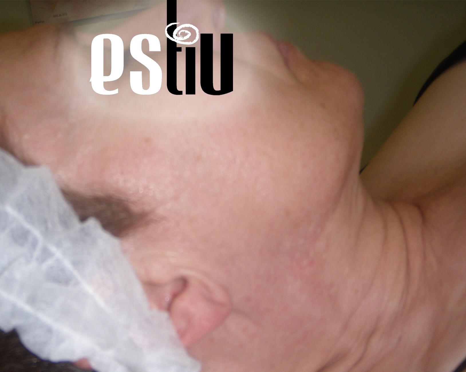 Centro Estiu carabanchel estética tratamiento corporal facial depilacion laser cera masaje maquillaje manicura pedicura pestañas especialistas